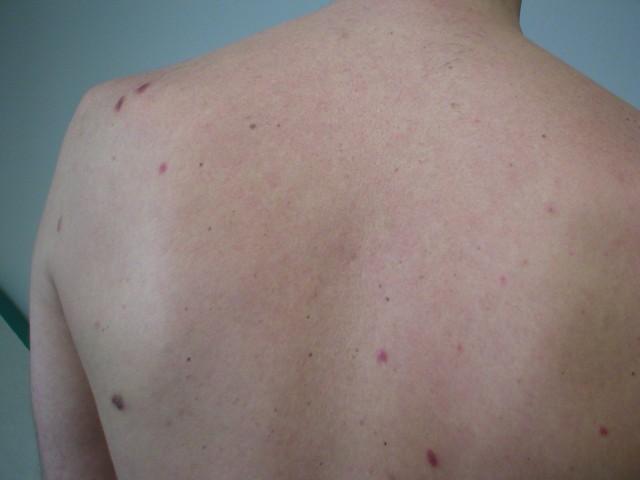 epidemisches Kaposisarkom am Rücken