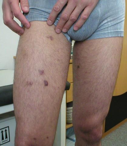 epidemisches Kaposisarkom an den Beinen